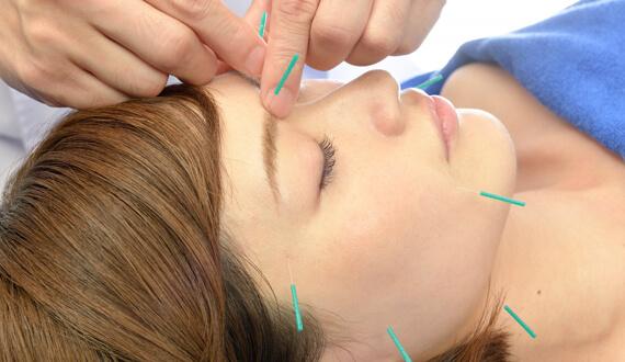 美容鍼・美顔鍼のススメ